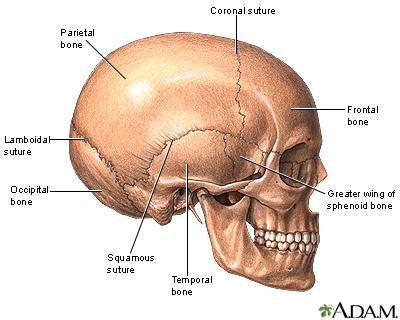Degeneration Of Facial Bones